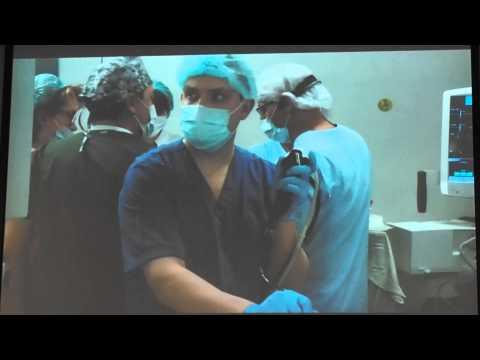 Тромбоэмболия легочной артерии: симптомы лечение - важно