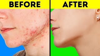 Hacks for acne skin 9 products dermatologists avoid: body lotion. lotions have a high water content. they don't penetrate the or prevent moist...