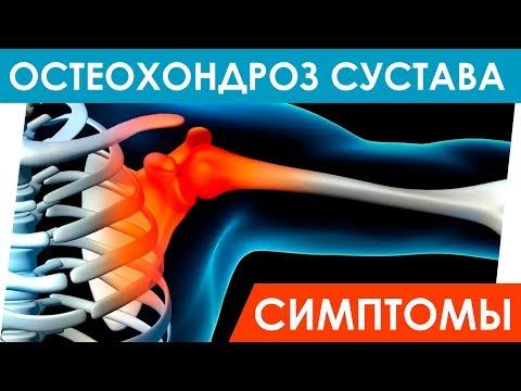 Остеохондроз сустава симптомы