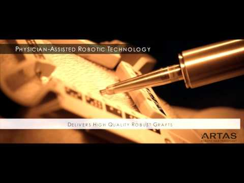 The ARTAS Robotic Hair Restoration Procedure