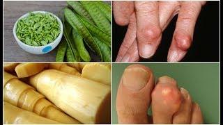 แชร์ด่วน! 33 อาหารต้องห้าม ที่คนเป็นโรคเก๊าท์ ไม่ควรกินเด็ดขาด! (33 Foods To Avoid For Gout)