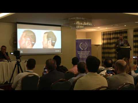 Dr Koray Erdogan - Coverage Value and Graft Calculator Presentation at the 2nd WFI Workshop Athens