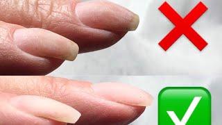 Аппаратный маникюр , поднятие свободного края у (клюющих) ногтей