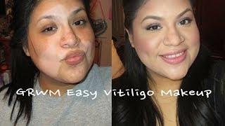 GRWM Easy Vitiligo Make Up