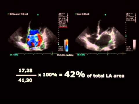 Echocardiographic Assesment of