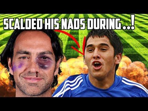 5 Bonkers Reasons Footballers Got Injured!