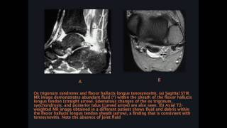 Ankle MRI Case Review Part 1