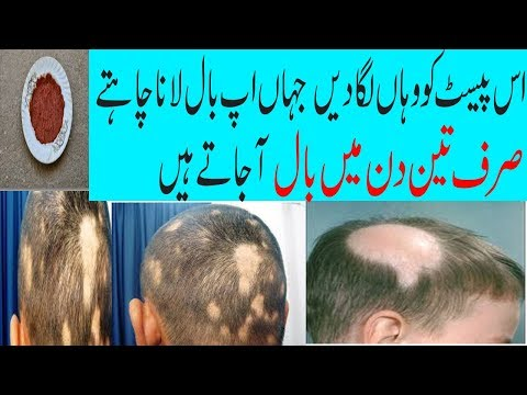 Totkay for hair - 3 Day Instant Hair Grow Tips