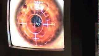 PRK Laser vision correction surgery live actual footage