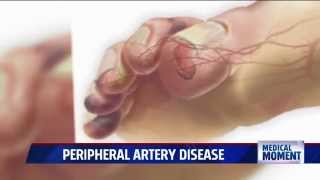 Symptoms and Treatments for Peripheral Artery Disease (PAD)