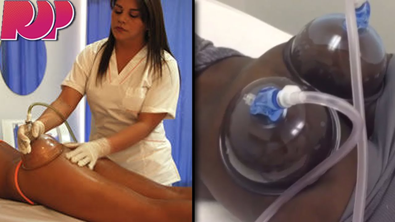 how to get a bigger butt with vacuum therapy - youtube