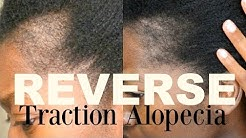 TRACTION ALOPECIA UPDATE 2 - HOW TO GROW BACK YOUR EDGES WITH EMU OIL - HOW TO MASSAGE YOUR SCALP