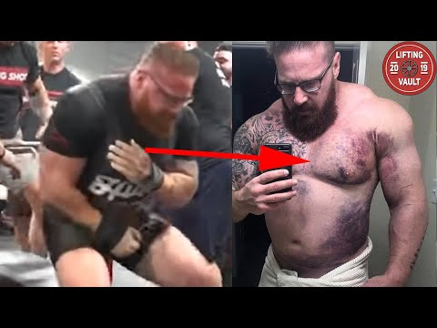 The Most Gruesome Injuries In Powerlifting