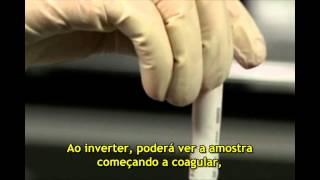 Tubo BD Vacutainer® RST - Grupo Alfalab / Comlab