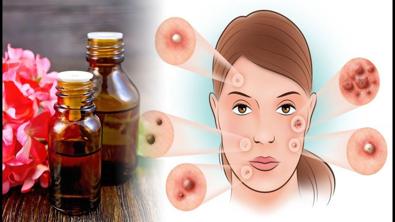 6 Incredible Benefits of Geranium Essential Oil