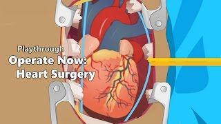 Operate Now: Heart Surgery - Walkthrough