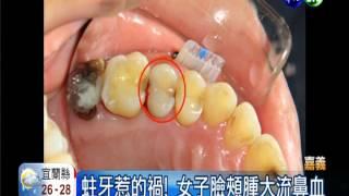 蛀牙誤敏感 臉腫蜂窩性組織炎