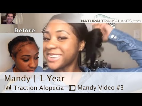 traction-alopecia-regrowth-|-i-got-my-edges-back-after-traction-alopecia-(mandy)