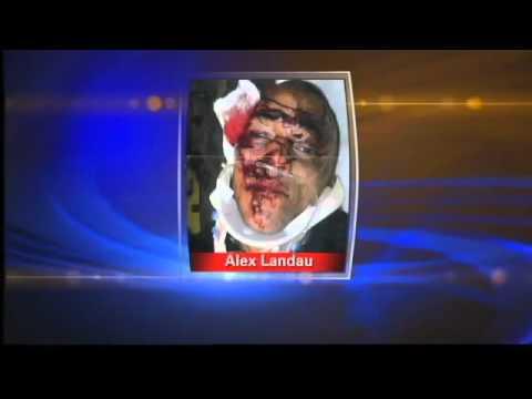 FBI Launches Criminal Probe Of Denver Police Beating