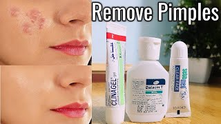How To Remove Acne Overnight || 3 Acne Treatment Products' Review and  2 Home Remedies Urdu Hindi