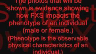 Fragile X Syndrome FXS
