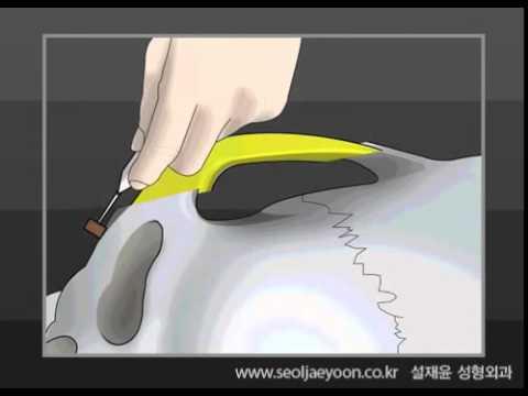 설재윤성형외과-광대뼈수술