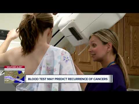 Simple blood test may predict recurrence of some breast cancers