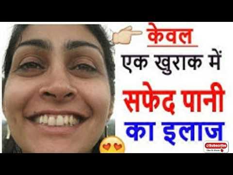 सफेद पानी का रामबाण इलाज | white discharge in women | safed pani ka ilaj | Brijwasi Girl