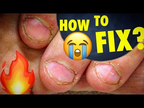 Amazing Transformation of Extremely Bitten Nails How to Fix Short Bitten Nails