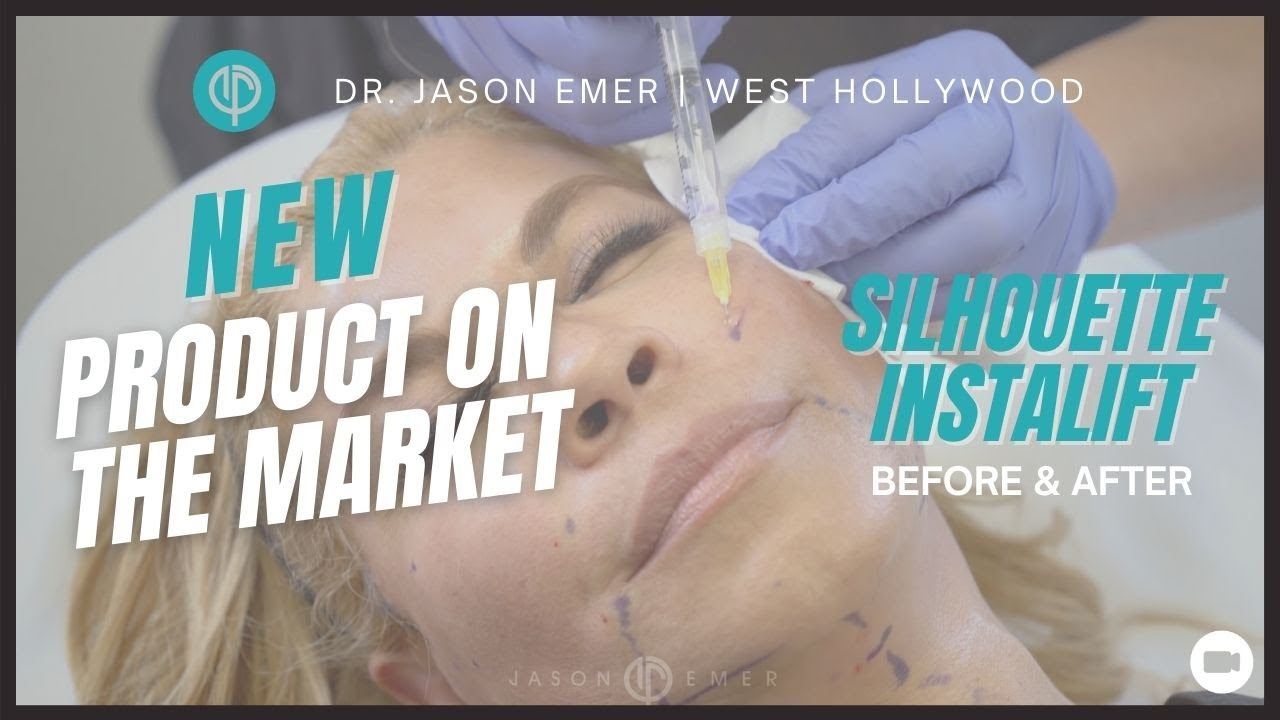 Silhouette Instalift | Non-Surgical Facelift | Silhouette instalift Before  & After | Dr  Jason Emer