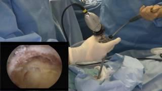 腰部脊柱管狭窄症に対するPELD法を応用した手術の手技紹介です。 岩井整...
