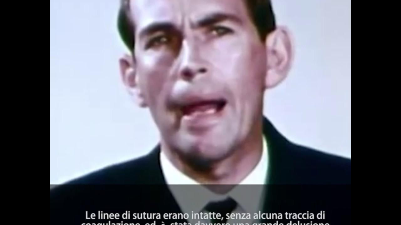 Storie di Medici: Christiaan Barnard