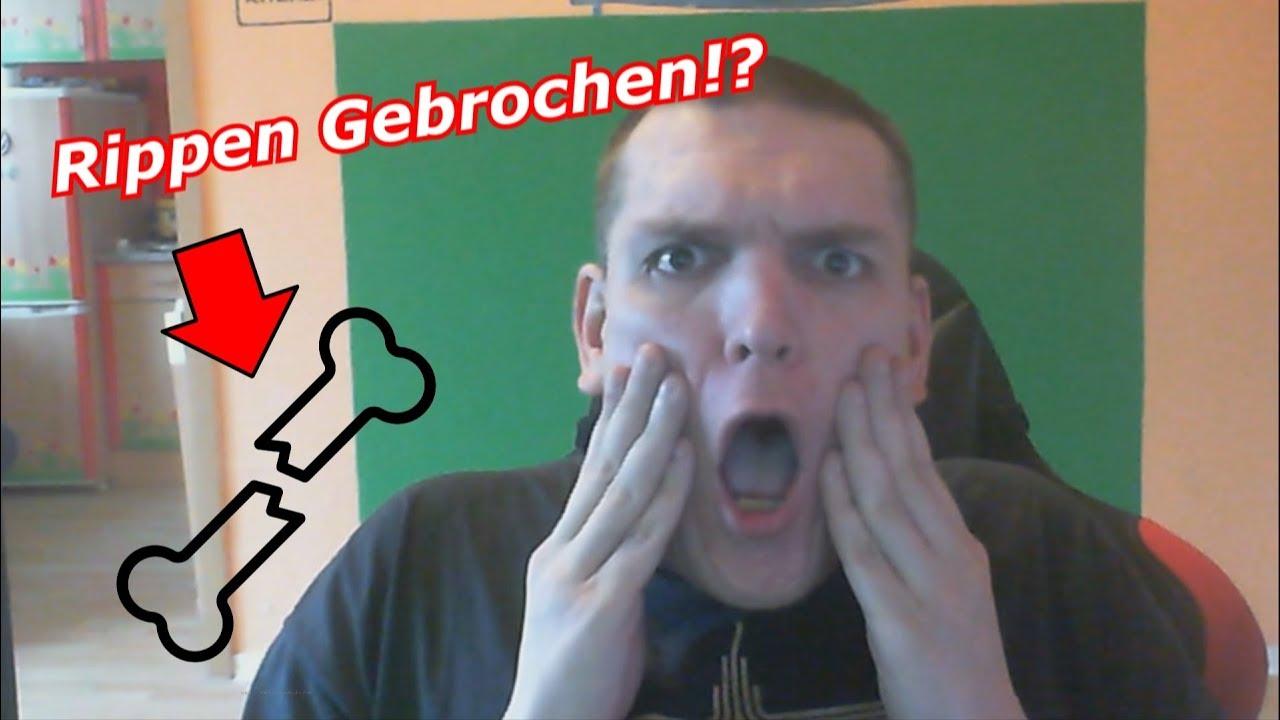 2 Rippen Gebrochen!? 🦴 | Info Video - YouTube