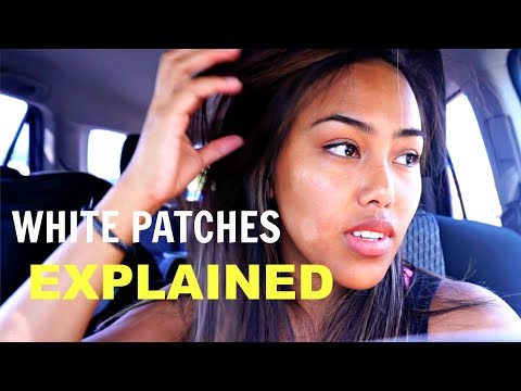 WHITE PATCHES ON SKIN EXPLAINED BY DERMATOLOGIST | TheFrostFamily