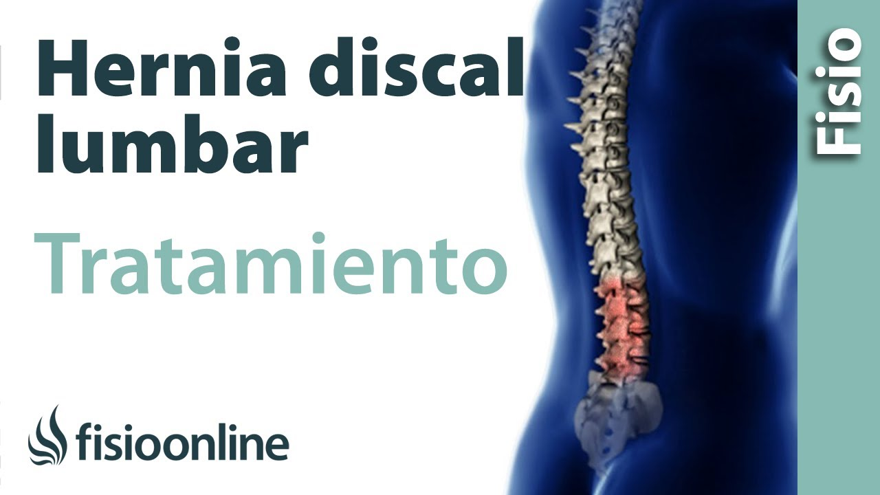 cura casera para hernia de disco