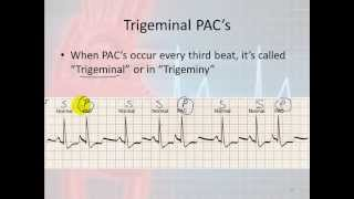 Basic Electrophysiology, part 7 - Atrial Rhythms, part 1, Introduction and PAC's