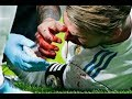 Ramos Injury Nasty Blow By Lucas Hernandez Blood Athletico Madrid Vs Real Madrid 19 11 2017 mp3