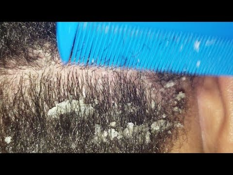 Dandruff Scratching | Scalp Check | Hair Combing ASMR