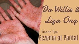 Makati ang Balat, Eczema at Pantal – by Doc Katty Go #35