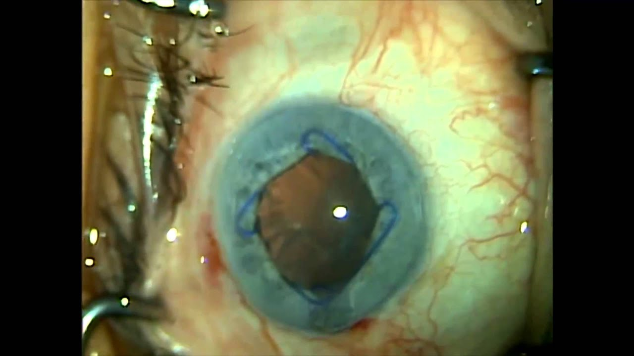 Malyugin ring in cataract surgery. 5-10-11. Shannon Wong, MD ...