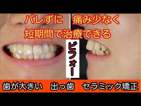 写真を撮る時今までは歯を隠すようにしていましたが、今はおもいっきり歯を出して笑えます。