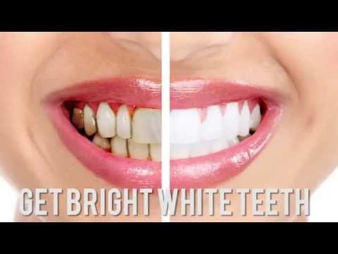 Teeth Whitening Dublin CALL 76 888 60 54