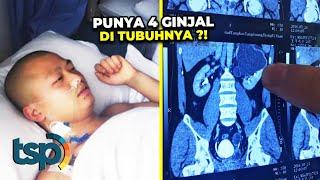 Auto Sultan Berawal dari Sakit Perut Pria Ini Baru Tau Punya 4 Ginjal