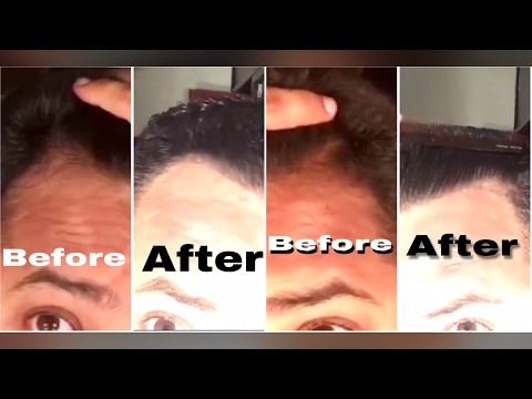 6 Month Derma Roller + Minoxidil Update / Hair Loss Hair Regrowth Update 2017