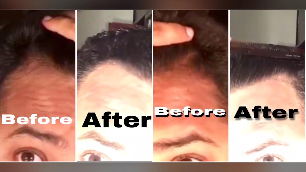 6 Month Derma Roller Minoxidil Hairline Update Hair Loss Hair