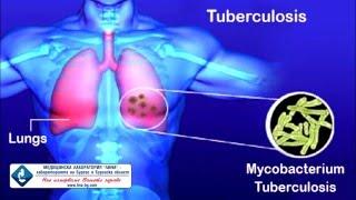 видео T-spot тест для диагностики туберкулезной инфекции