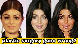 Ayesha Takia's plastic surgery gone wrong?