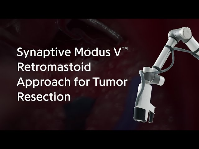 Synaptive Modus V™ Retromastoid Approach for Tumor Resection