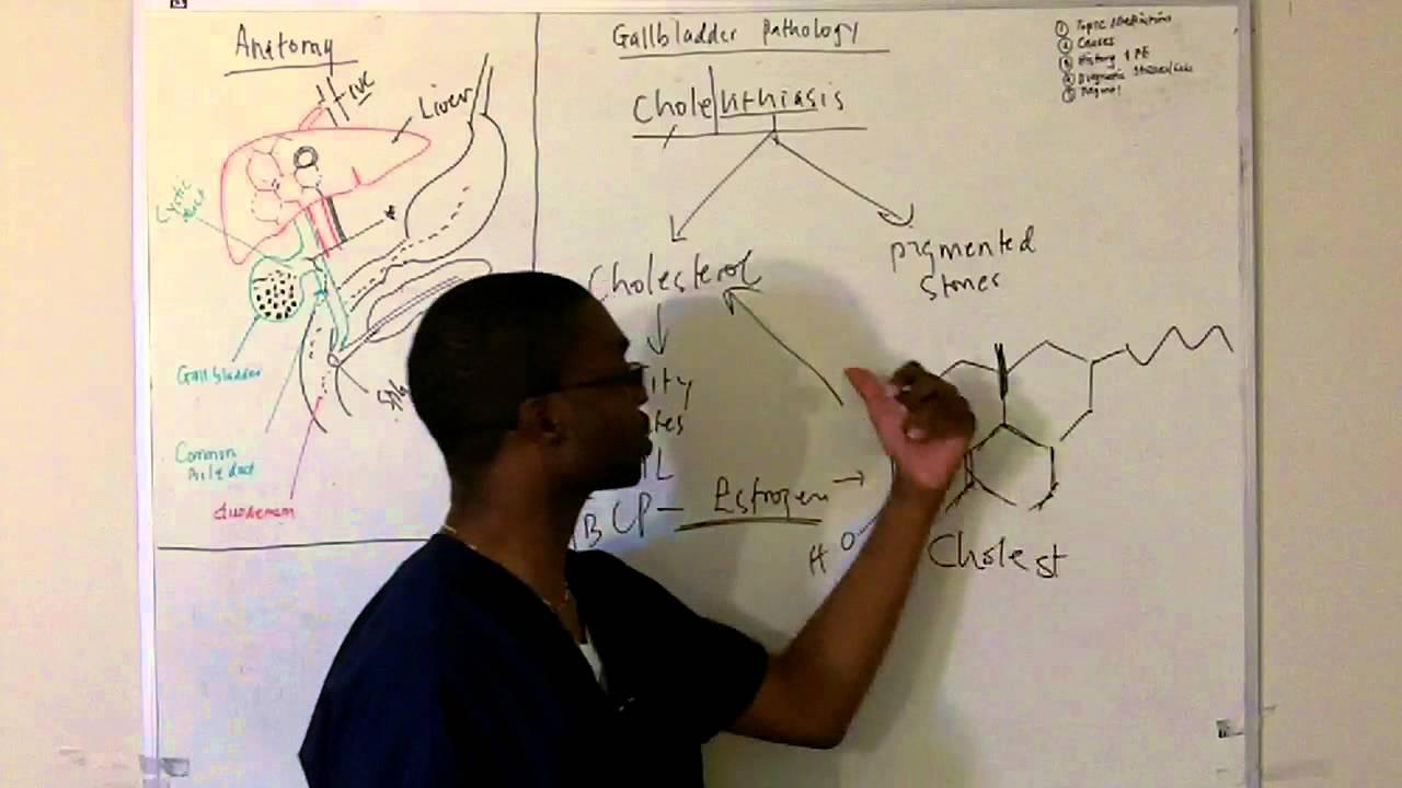 Gall bladder pathology cholelithasis in hd youtube ccuart Images