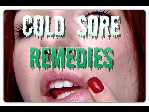How I Treat My Fever Blisters To Get Rid Of Them Fast, How To Get Rid Of Cold Sores On Your Lips